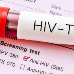 HIV + VDRL $21.00